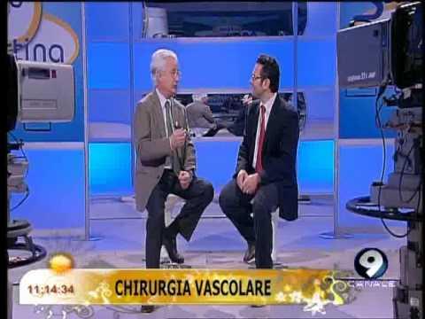 Metodi di trattamento di nodi varicosi