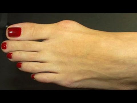 Video Home remedies for Bone Spurs