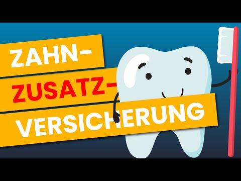 Zahnzusatzversicherung - was wirklich WICHTIG ist | So findest du den BESTEN Tarif
