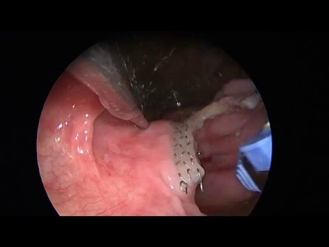 Les ulcères à la photo variqueuse