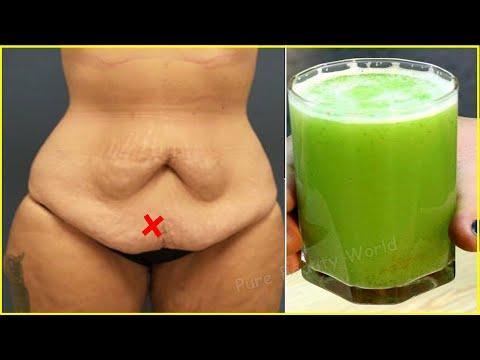 Dieta de slabire carmen bruma
