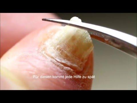 Ob der Knoblauch von gribka der Nägel helfen wird