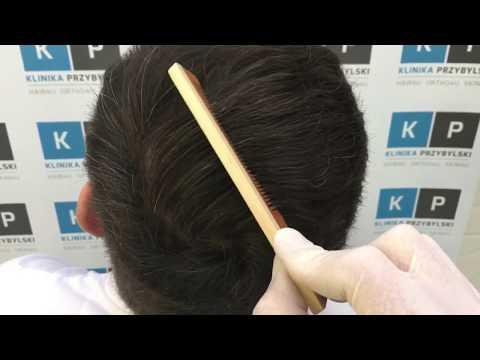 Do traktowania włosów z keratyną