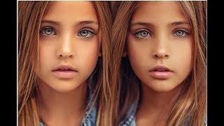 Как сейчас живут близняшки, которых признали самыми красивыми девочками в мире