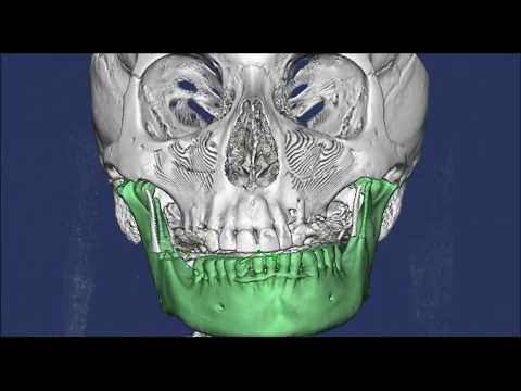 Анализ движений нижней челюсти с визуализацией суставов