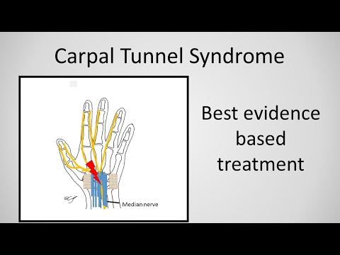 Módszerek a könyökízület artrózisának kezelésére