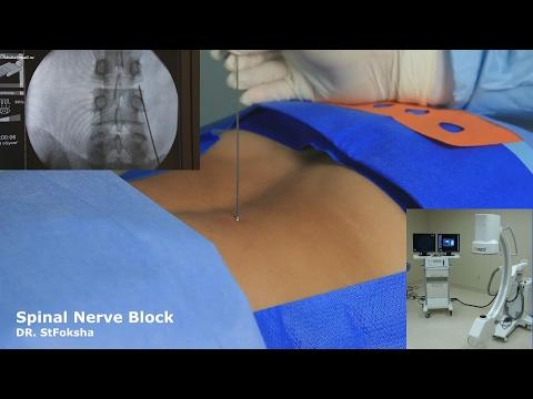 Остеохондроз позвоночника рентгенологические признаки