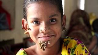 Люди Мутанты Живут Среди Нас: Невероятные Редкие Страшные Генетические Мутации Прогерия Гипертрихоз