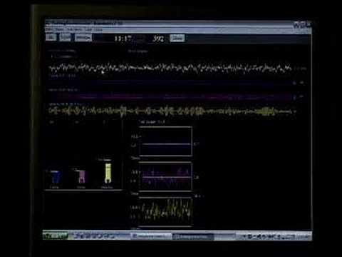 9 - EEG Training - YouTube