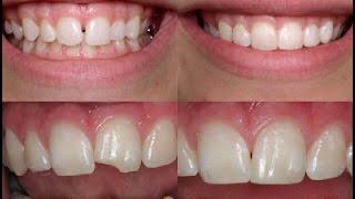 Реставрация скола зуба