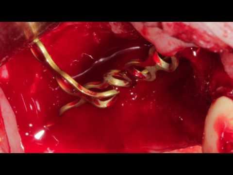 Направленная костная регенерация с помощью минипластин