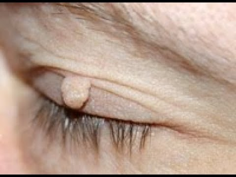 Ploskovalgusnaya deformacja stóp u dziecka 6 lat leczenia