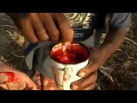 Kung paano upang matukoy ang pagkakaroon ng mga parasites sa katawan