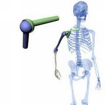 Ersatz der Gelenke bei der rheumatoiden Arthritis