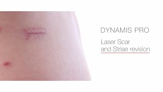 Laser Scar and Striae Revision