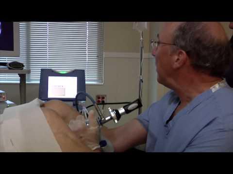 Operation, um die Prostata zu entfernen Preise