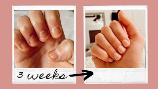 How to Stop Biting Your Nails for GOOD! What Finally Worked💅