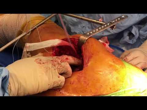 A beteg ízület kezelése a karon