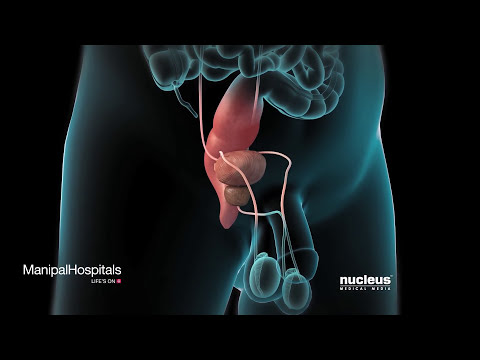 Robotic Simple Prostatectomy Using A Transverse Bladder Incision