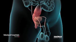 Prostate Cancer-SurgicalVideo In India