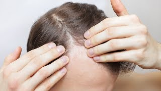 Hairstylist Explains Hair Loss - TheSalonGuy
