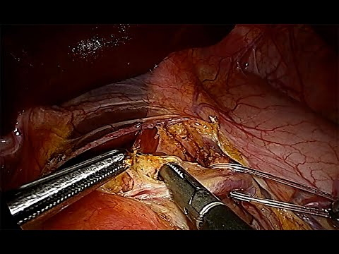 Celiac Trunk Injury During Laparoscopic Treatment of Median Arcuate Ligament Syndrome (Mals, Dunbar)