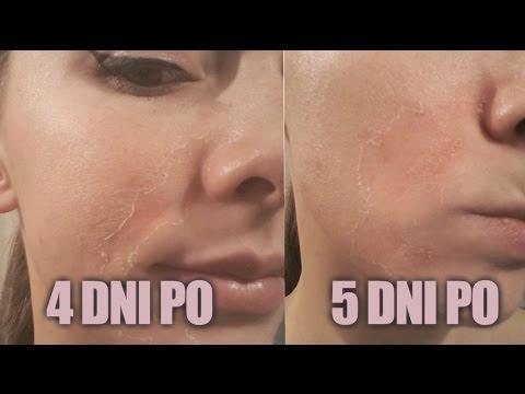 Ciemne plamy na twarzy po obraniu leczenie