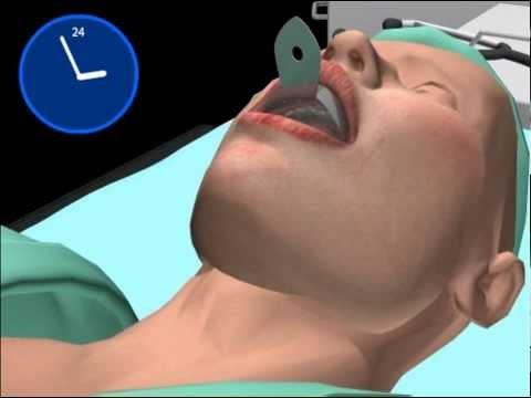 Anestesia generale