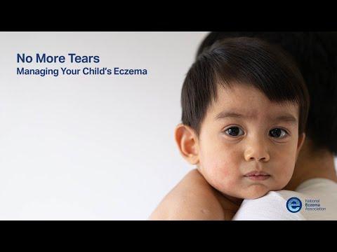 Dermatite di atopic forma infantile di una fotografia