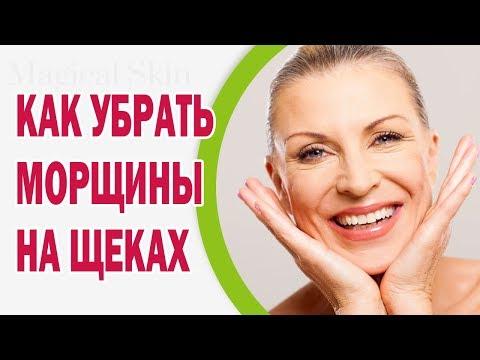 Морщины на щеках: причины, как убрать