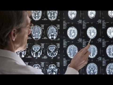 Video 10 Gejala Umum Tumor Otak Yang Penting Anda Tahu
