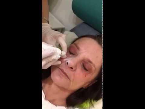 Xanthelasma Plexr treatment