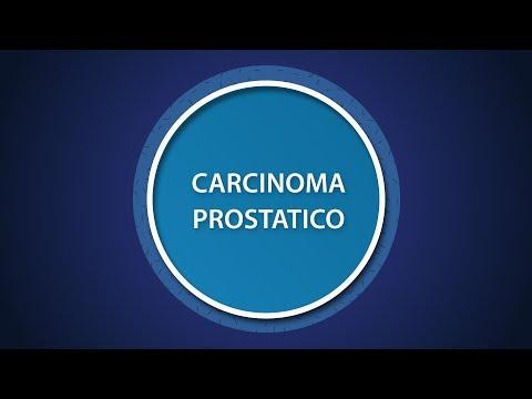 Non può a prostata