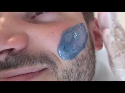 condilom mustață aurie negii care este tratamentul
