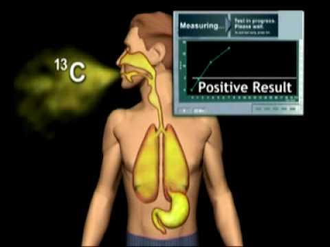 Le traitement contre le psoriasis balachikhe