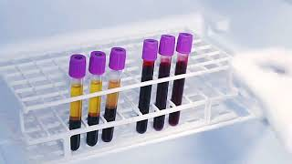 HbA1c Test Procedure||Demonstration||Blood Sample||ALERE ABBOTT