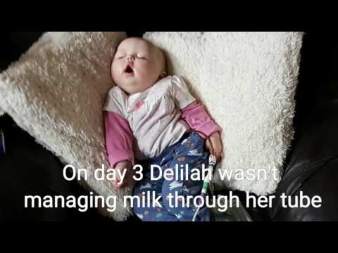Video Delilah's fight against Krabbe Disease continued