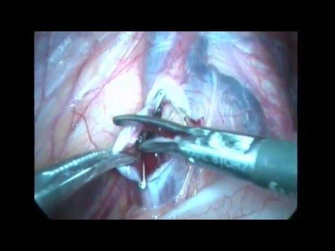 Лапароскопическая варикоцелэктомия слева (полнометражка).