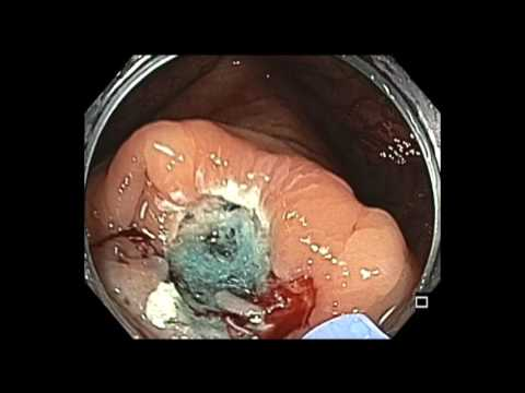 Colonoscopy: Cecum - EMR of a Subtle Flat Lesion in the Cecum