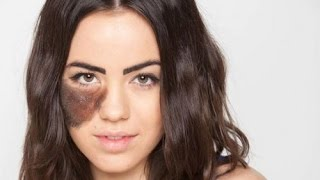 Birthmarks Causes and What is remedy of Birthmarks