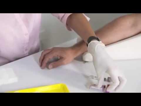 Die Behandlung meschposwonkowoj die Brüche mit Hilfe des Honigs
