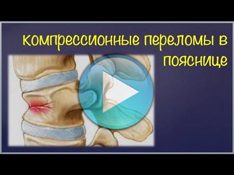 Übungen in der zervikalen Osteochondrose thorakalen 2