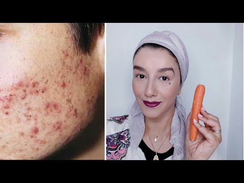 La cosmética para el adelgazamiento y la belleza