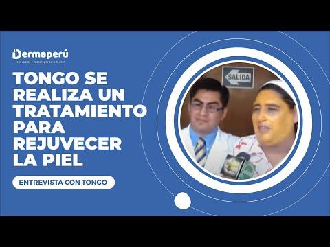 Tongo invita al consultorio – Dr. Aparcana