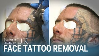Watch This Man Have His Face Tattoo Removed From Laser Surgery