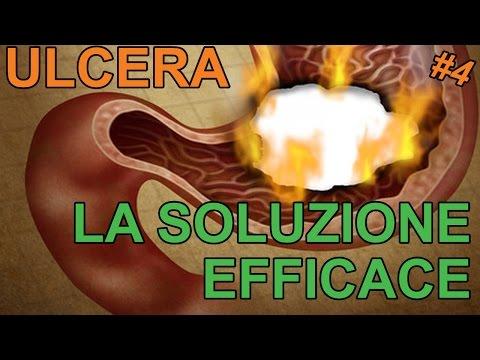 Emorroidi e trattamento semplice ed efficace varicosity