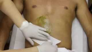 Male Stomach Hair Removal New York.Stomach Waxing For Men in NYC (Azulene)