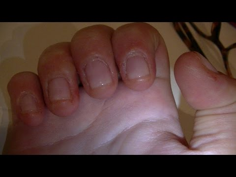 El hongo de las uñas el tratamiento la loción