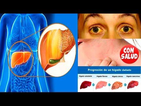 Tratamiento de la hipertensión y fireweed