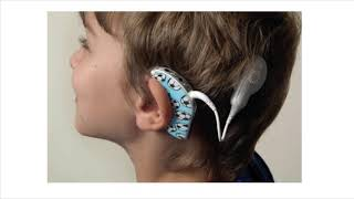 Module 4: Introduction To Cochlear Implants